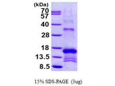 SLPI Secretory Leukocyte Peptidase Inhibitor Human Recombinant Protein