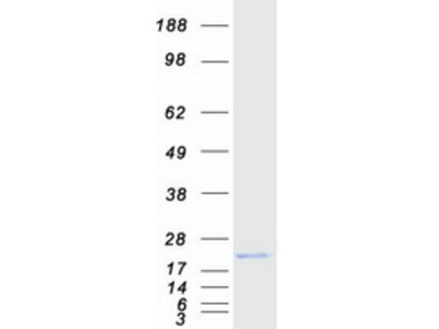 beta Synuclein (SNCB) Human Recombinant Protein