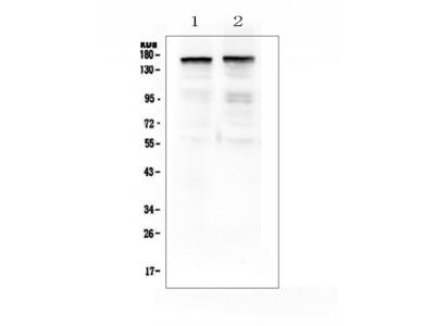 Anti-Thrombospondin 2/THBS2 Antibody Picoband