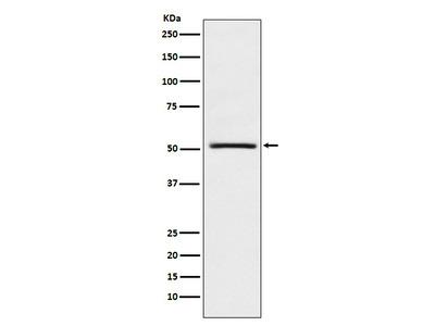 Anti-NR0B1 / DAX1 Monoclonal Antibody