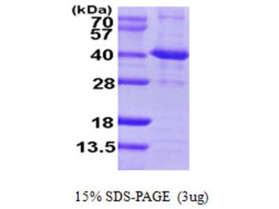 SIRT2 Sirtuin 2 Human Recombinant Protein