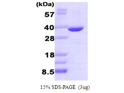 Human Aldose reductase Recombinant Protein