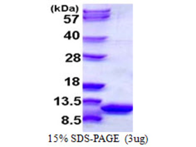 S100A6 S100 Calcium Binding Protein A6 Mouse Recombinant Protein