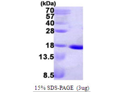NDK Nucleoside Diphosphate Kinase E.Coli Recombinant Protein