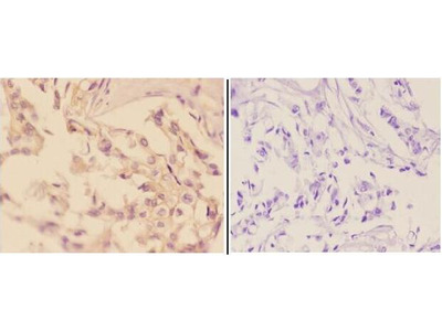 Anti-Adducin Beta (E497) ADD2 Antibody