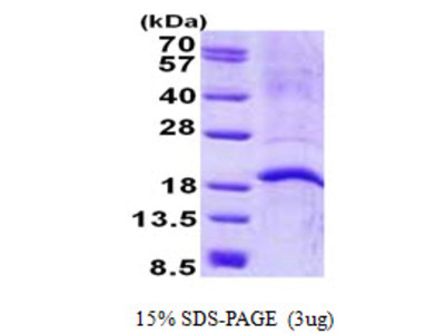 CAMP Cathelicidin Antimicrobial Peptide Human Recombinant Protein