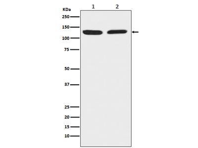 Anti-Chromogranin B CHGB Monoclonal Antibody