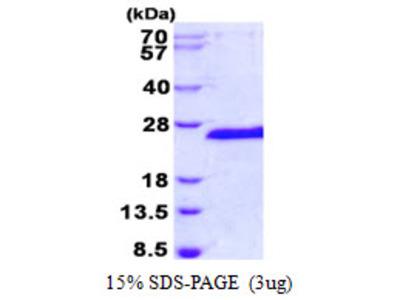 Human SIAH1 Recombinant Protein