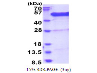 BCCIP BRCA2 And CDKN1A Interacting Protein Human Recombinant Protein
