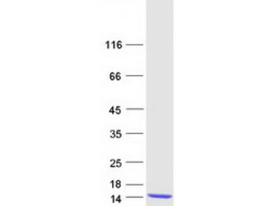 S100A2 S100 Calcium Binding Protein A2 Human Recombinant Protein