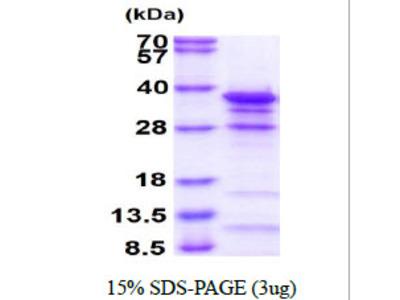 EYA2 Eyes Absent Homolog 2 Human Recombinant Protein