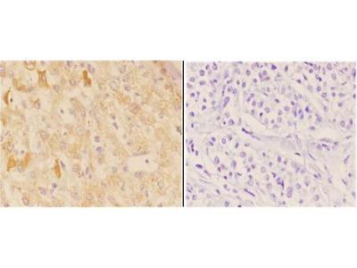 Anti-AChR Alpha 1 (E217) CHRNA1 Antibody