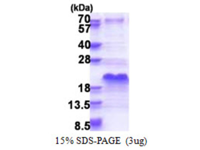 Human SHFM1 Recombinant Protein