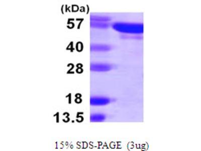 YARS Tyrosyl-tRNA Synthetase Human Recombinant Protein