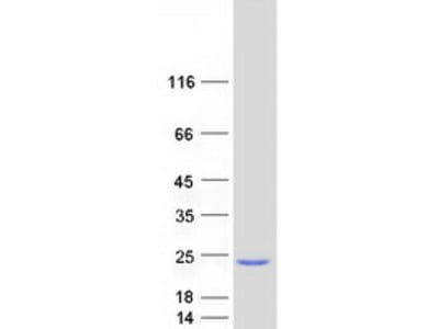SKP1 Alpha S-phase Kinase-Associated Protein 1 Isoform A Human Recombinant Protein