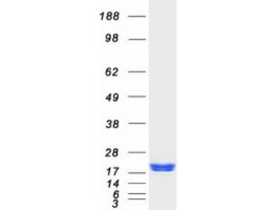 ARF6 ADP-Ribosylation Factor 6 Human Recombinant Protein