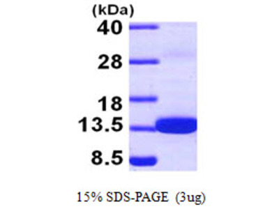 S100Z S100 Calcium Binding Protein Z Human Recombinant Protein