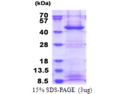 FBXO2 F-Box Protein 2 Human Recombinant Protein