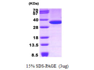 ANXA5 Annexin A5 Human Recombinant Protein