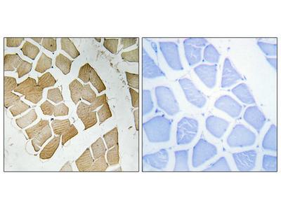 Anti-PTG PPP1R3C Antibody