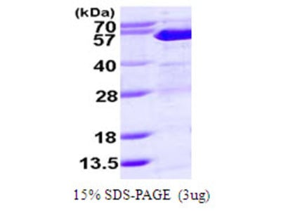 SUFU Suppressor of Fused Homolog Human Recombinant Protein