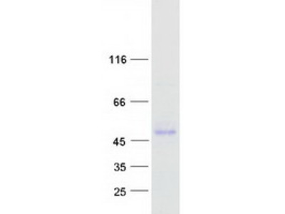 PEDF Human, Pigment Epithelium-Derived Factor Human Recombinant Protein, His Tag