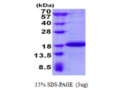 Human SDHAF2 Recombinant Protein