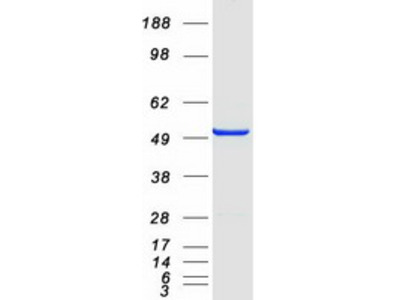 STAMBPL1 STAM Binding Protein Like 1 Human Recombinant Protein