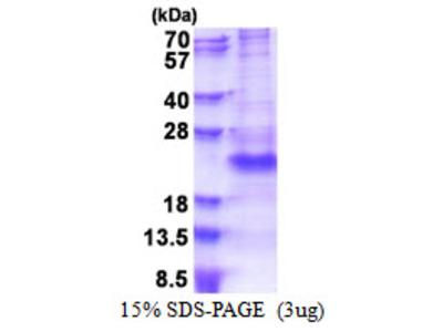 Human PSGL-1/CD162 Recombinant Protein