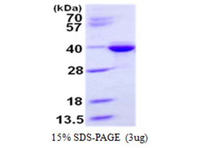Human STX3 Recombinant Protein