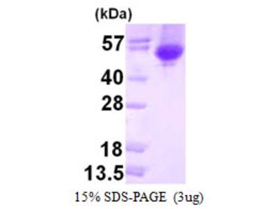 melA Alpha-Galactosidase E.coli Recombinant Protein