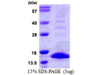 S100A9 S100 Calcium Binding Protein A9 Mouse Recombinant Protein