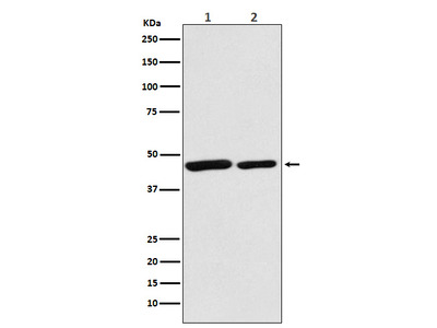 Anti-Citrate synthetase Monoclonal Antibody