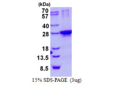 Human SIX6 Recombinant Protein