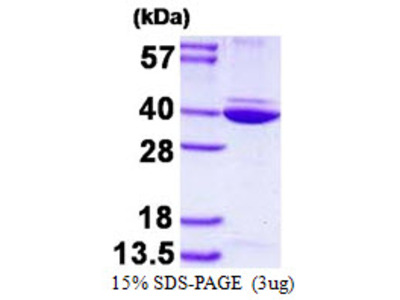 ANXA8L2 Annexin A8 Like-2 Human Recombinant Protein