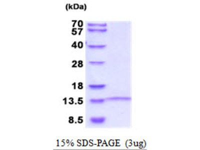 LINGO1 Leucine Rich Repeat And Ig Domain Containing 1 Human Recombinant Protein