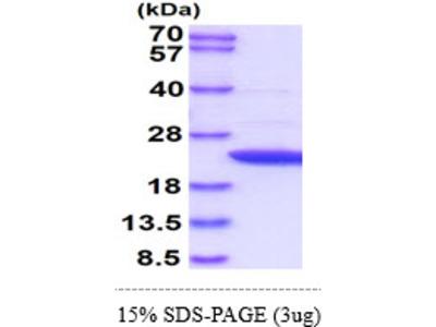 APRT Adenine Phosphoribosyltransferase Human Recombinant Protein