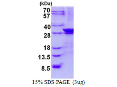LIN7A Human Recombinant Protein