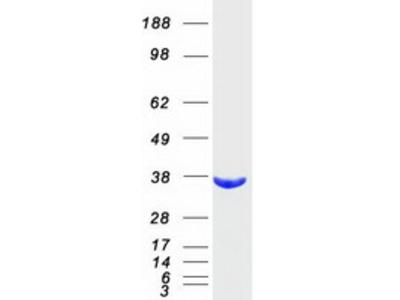 AKR1B10 Human Recombinant Protein