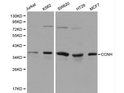 Anti-Cyclin H CCNH Antibody