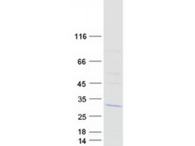 LSM12 Human Recombinant Protein