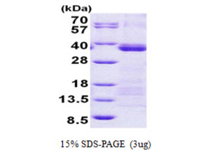 U2AF1 U2 Small Nuclear RNA Auxiliary Factor 1 Human Recombinant Protein