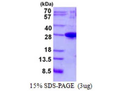 JOSD1 Josephin Domain Containing 1 Human Recombinant Protein