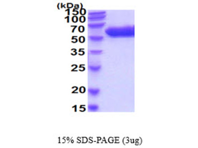 Mouse Arsa Recombinant Protein