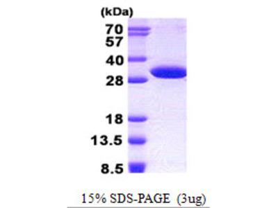 NUDT14 Nudix Type Motif 14 Human Recombinant Protein