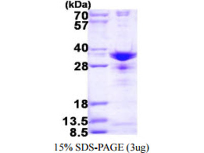 Human SNRPA1 Recombinant Protein