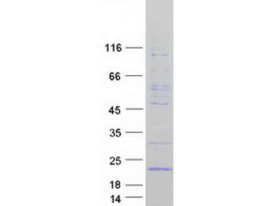 GADD45G Growth Arrest and DNA-Damage-Inducible Gamma Human Recombinant Protein