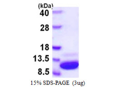 S100A1 S100 Calcium Binding Protein A1 Mouse Recombinant Protein