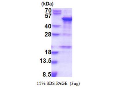 Human SNAPC1 Recombinant Protein