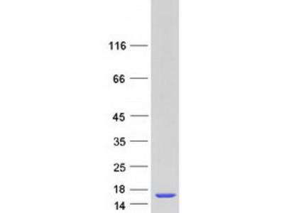 LSM5 Human Recombinant Protein